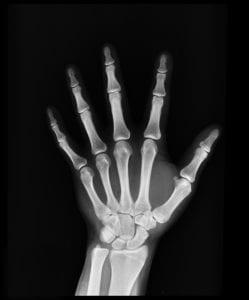 Osteoarthritis – Part 1
